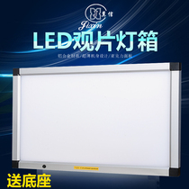 Yanxin X-ray viewing light to see ct lamp dental led viewing light box reading film light triple-viewer double-linked orthopaedics